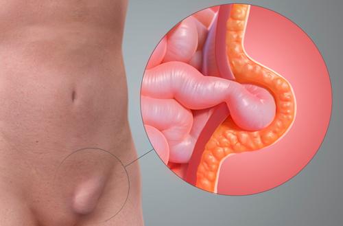 hernia inguinal en mujeres fotos